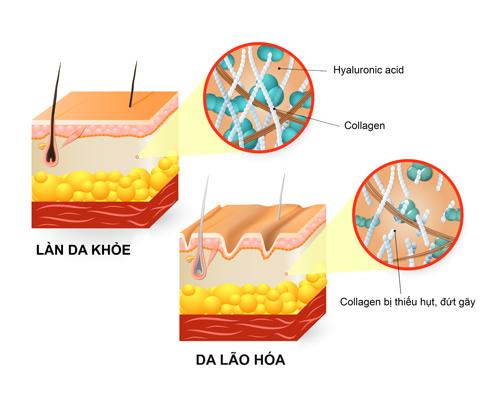 Muốn ngăn ngừa lão hóa da và có hiệu quả chăm sóc toàn diện, phải sử dụng collagen có chứa HA
