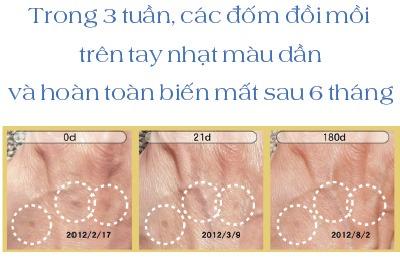 Làn da thay đổi rõ rệt sau 3 tháng sử dụng curcu nano serum