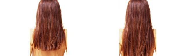 liệu pháp meso kích thích mọc tóc